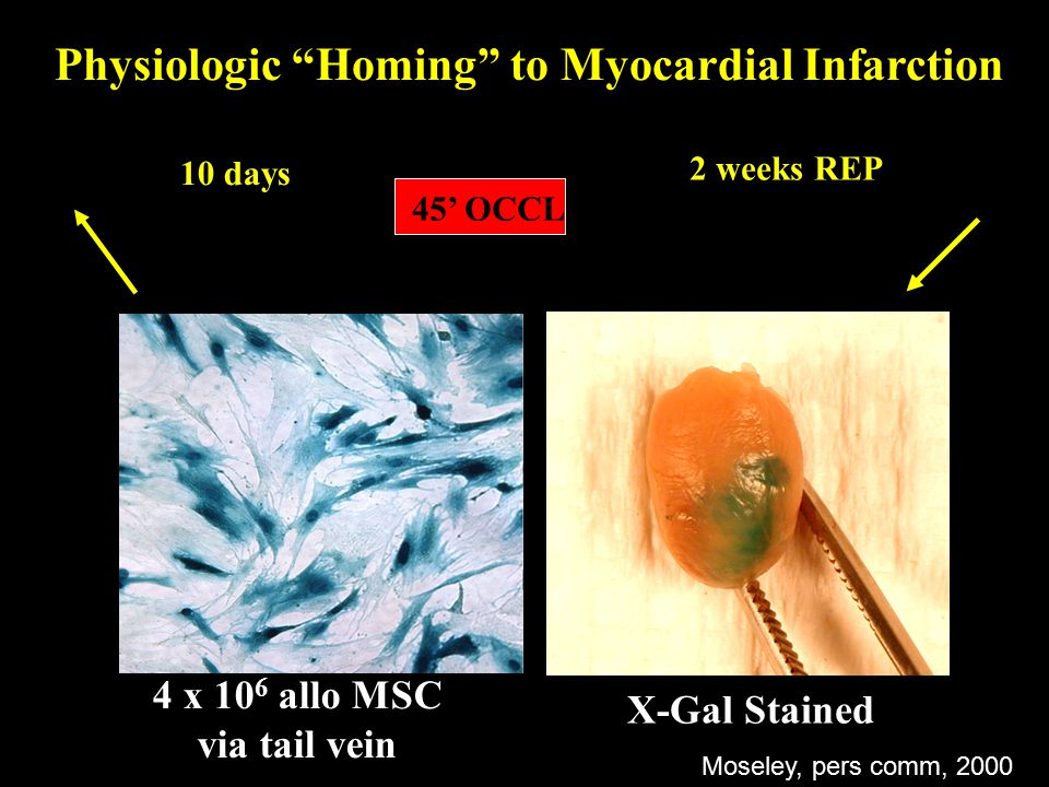Physiologic Homing to Myocardial Infarction 4 x 10 6 allo MSC via tail vein 2 weeks REP 10 days 45' OCCL X-Gal Stained Moseley, pers comm, 2000