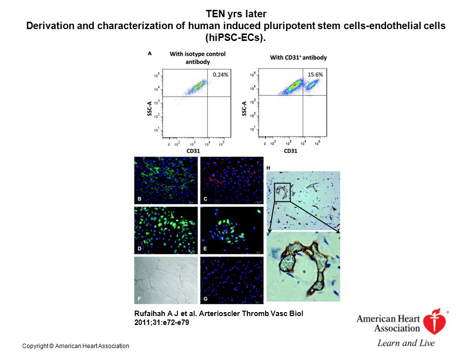 TEN yrs later Derivation and characterization of human induced pluripotent stem cells-endothelial cells (hiPSC-ECs).