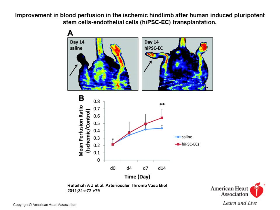 Improvement in blood perfusion in the ischemic hindlimb after human induced pluripotent stem cells-endothelial cells (hiPSC-EC) transplantation. Rufai
