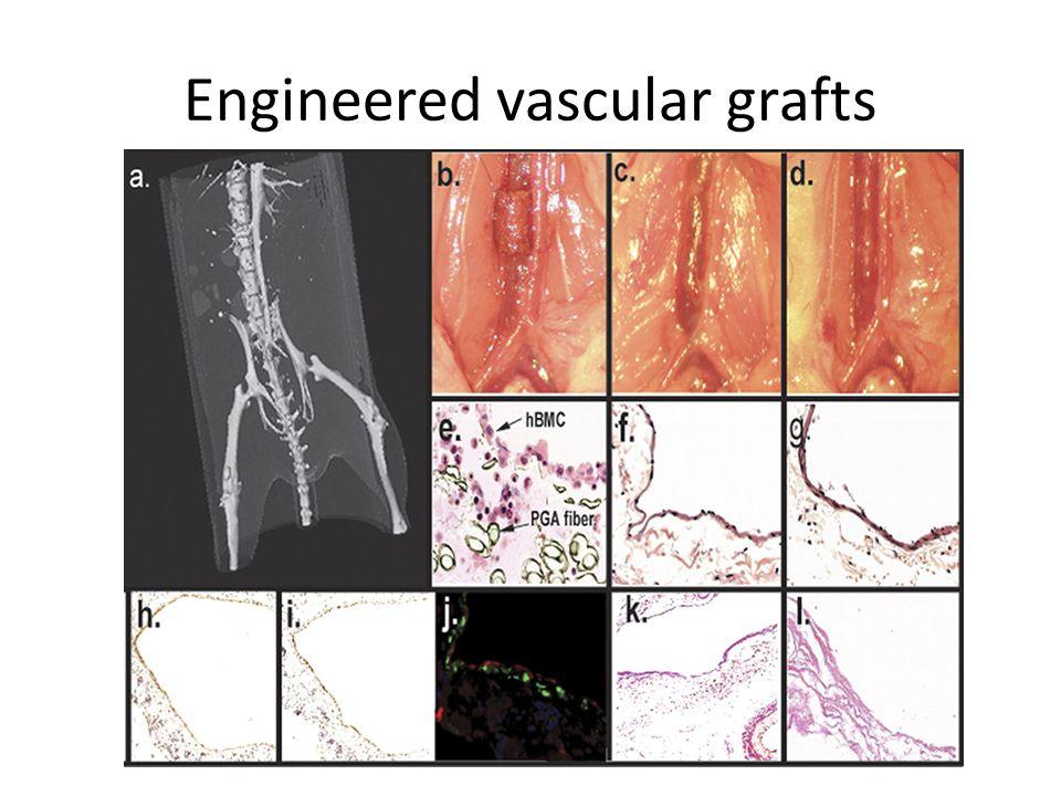 Engineered vascular grafts