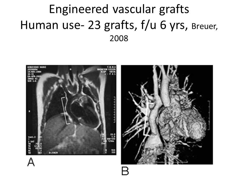 Engineered vascular grafts Human use- 23 grafts, f/u 6 yrs, Breuer, 2008