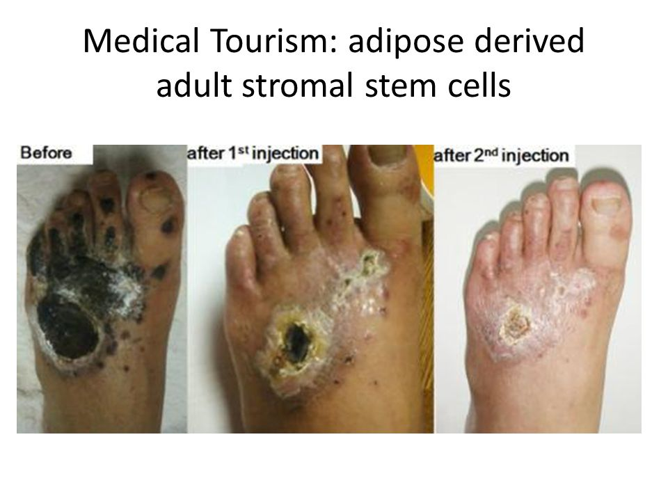 Medical Tourism: adipose derived adult stromal stem cells