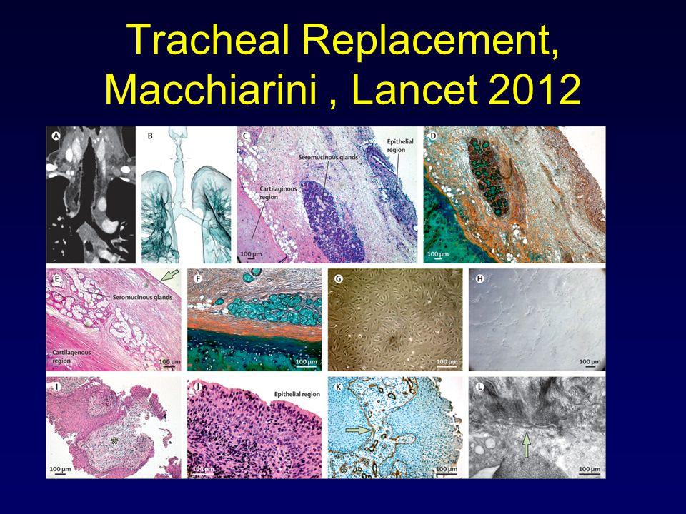 Tracheal Replacement, Macchiarini, Lancet 2012