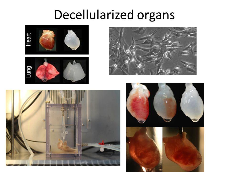 Decellularized organs