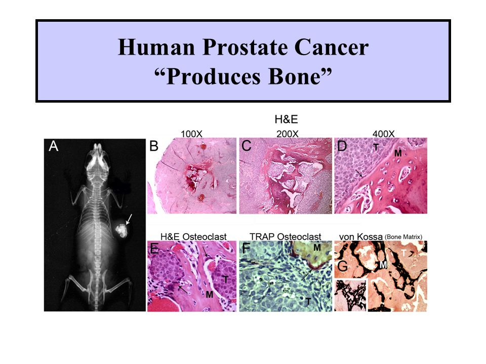 Human Prostate Cancer Produces Bone