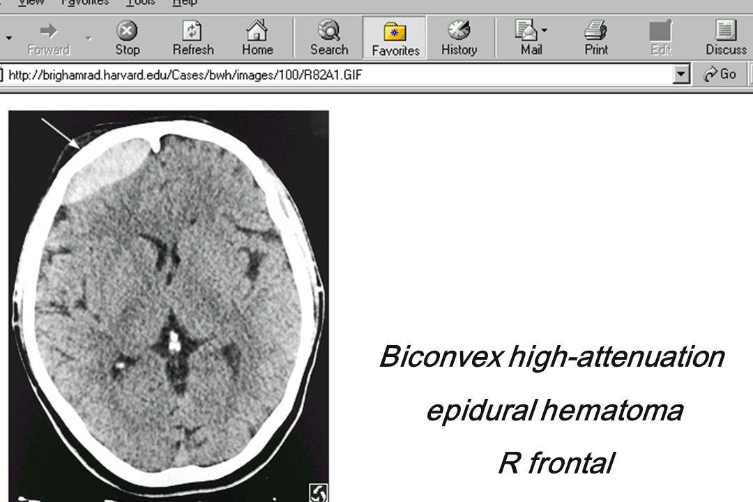 Biconvex high-attenuation epidural hematoma R frontal