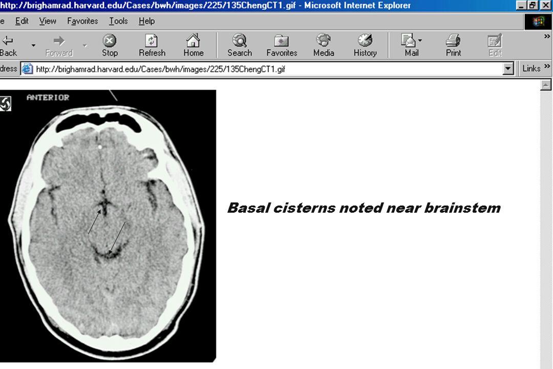 Basal cisterns noted near brainstem