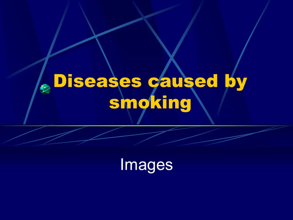 Diseases caused by smoking Images