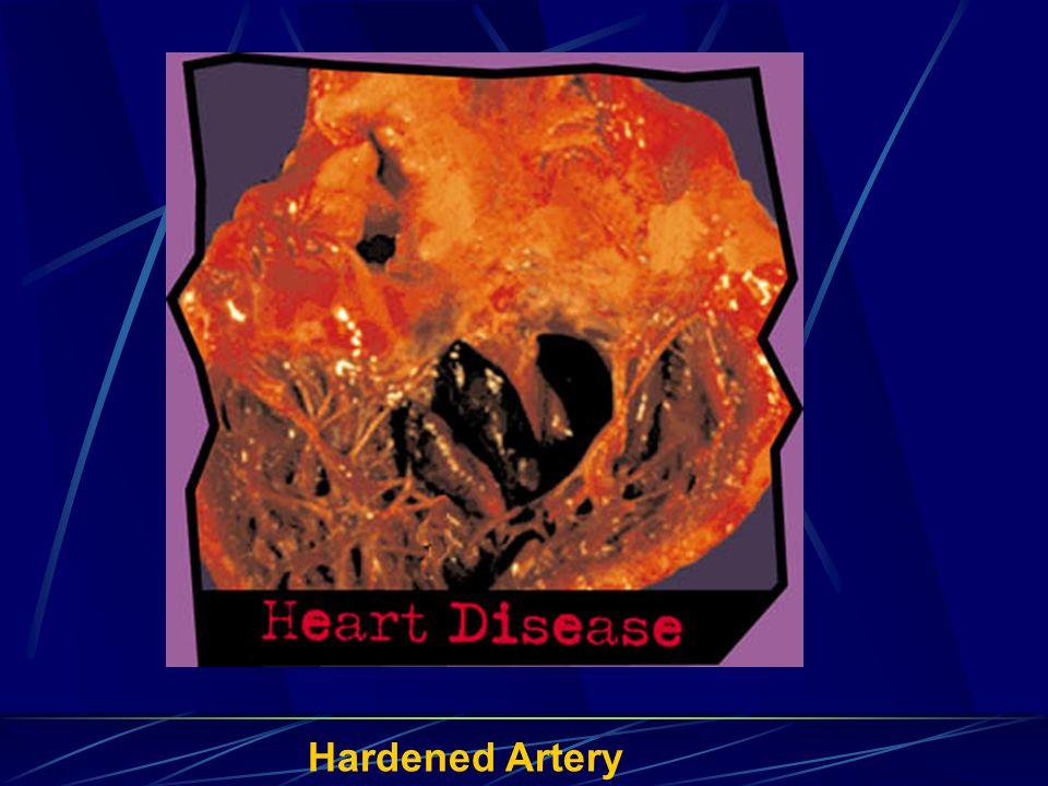 Hardened Artery