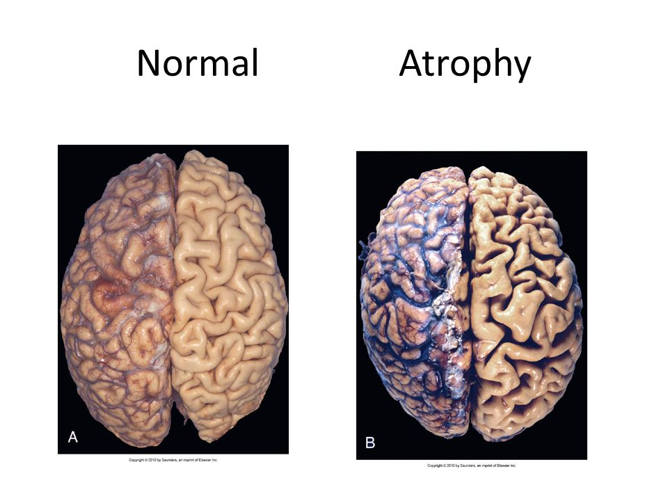Normal Atrophy