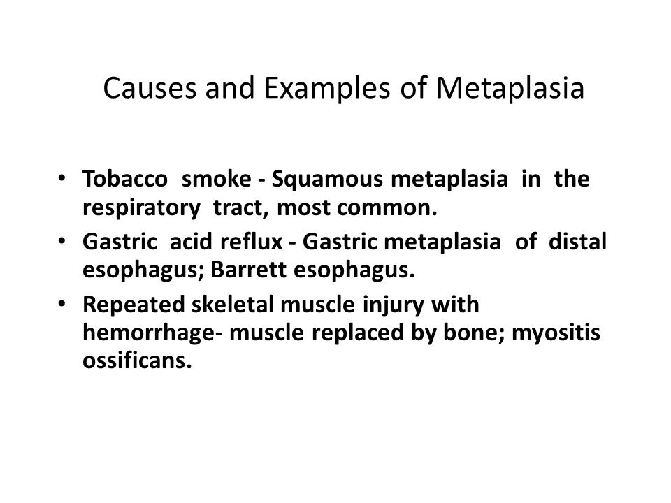 Causes and Examples of Metaplasia Tobacco smoke - Squamous metaplasia in the respiratory tract, most common.