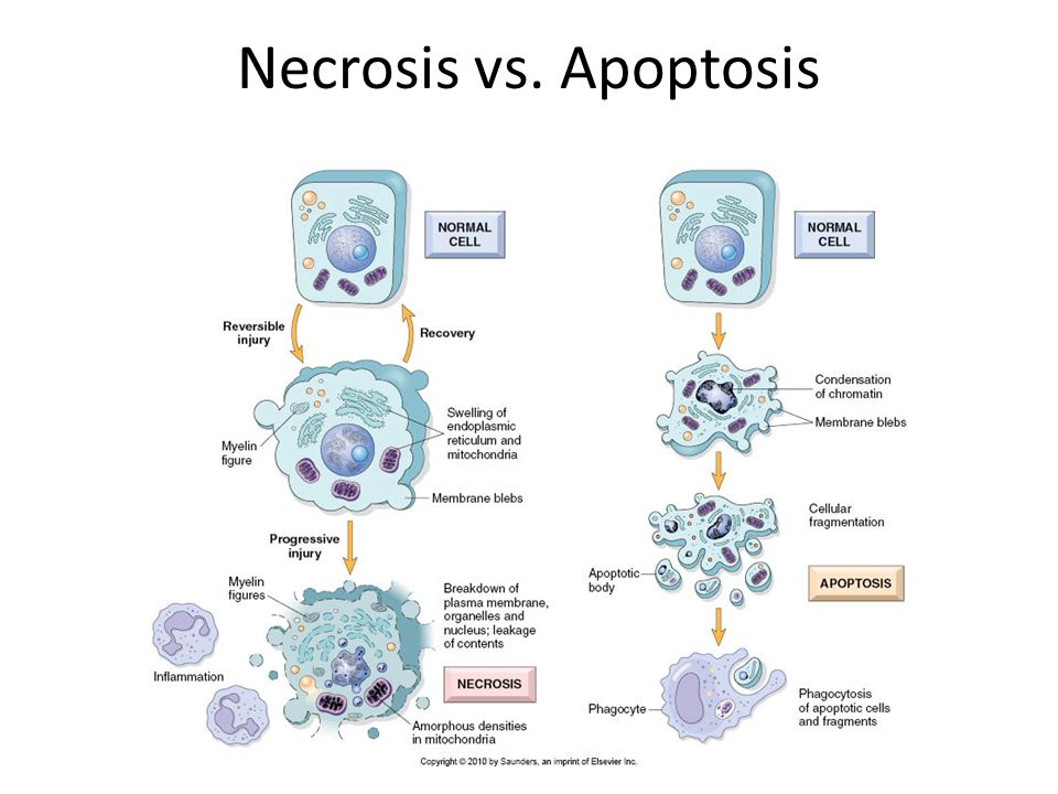 Necrosis vs. Apoptosis