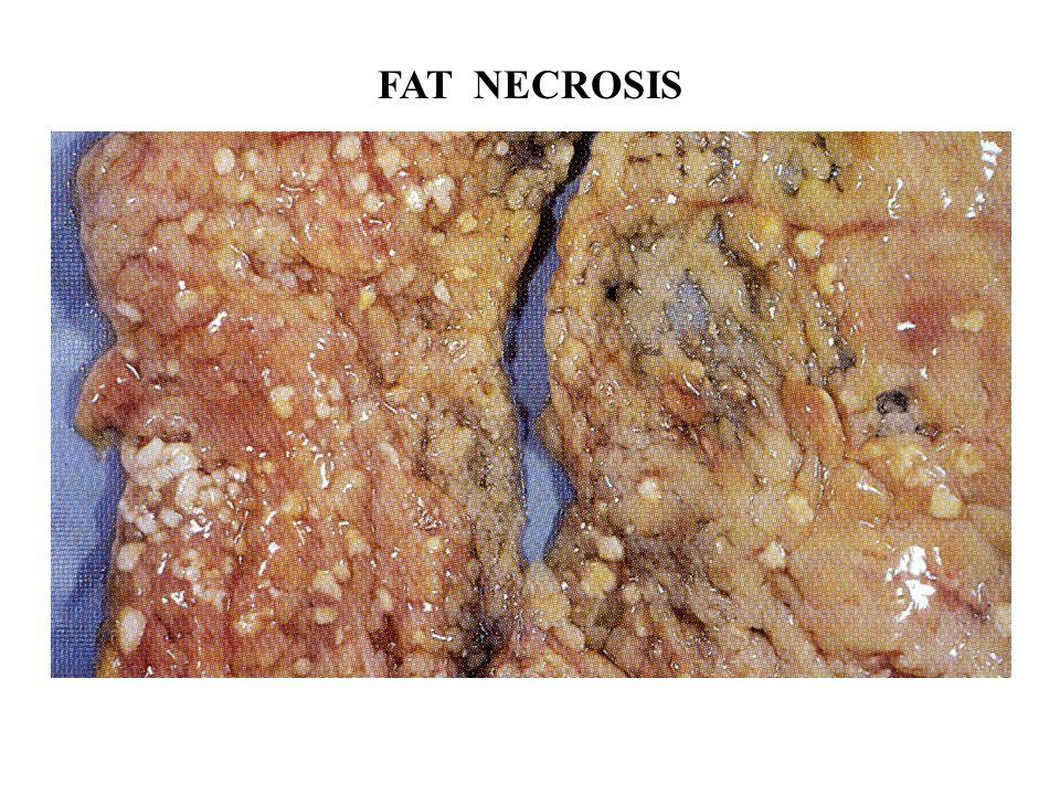 FAT NECROSIS