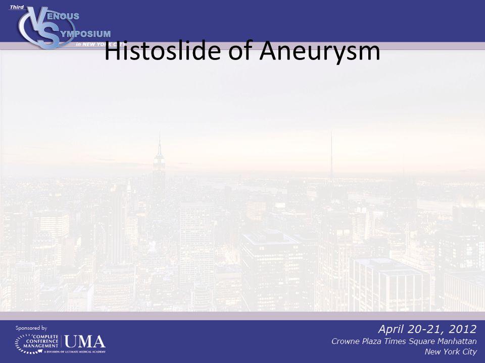 Histoslide of Aneurysm