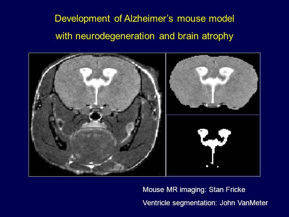 Development of Alzheimer's mouse model with neurodegeneration and brain atrophy Mouse MR imaging: Stan Fricke Ventricle segmentation: John VanMeter