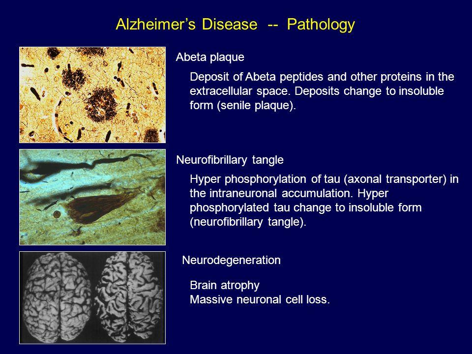 Alzheimer's Disease -- Pathology Abeta plaque Neurofibrillary tangle Neurodegeneration Deposit of Abeta peptides and other proteins in the extracellular space.