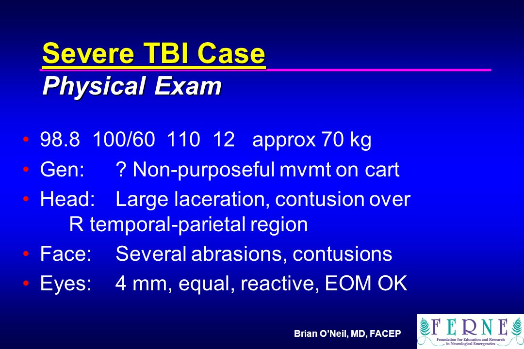 Brian O'Neil, MD, FACEP Severe TBI Case Physical Exam 98.8 100/60 110 12 approx 70 kg Gen: .