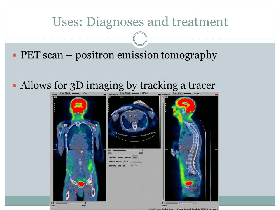 Uses: Diagnoses and treatment PET scan – positron emission tomography Allows for 3D imaging by tracking a tracer