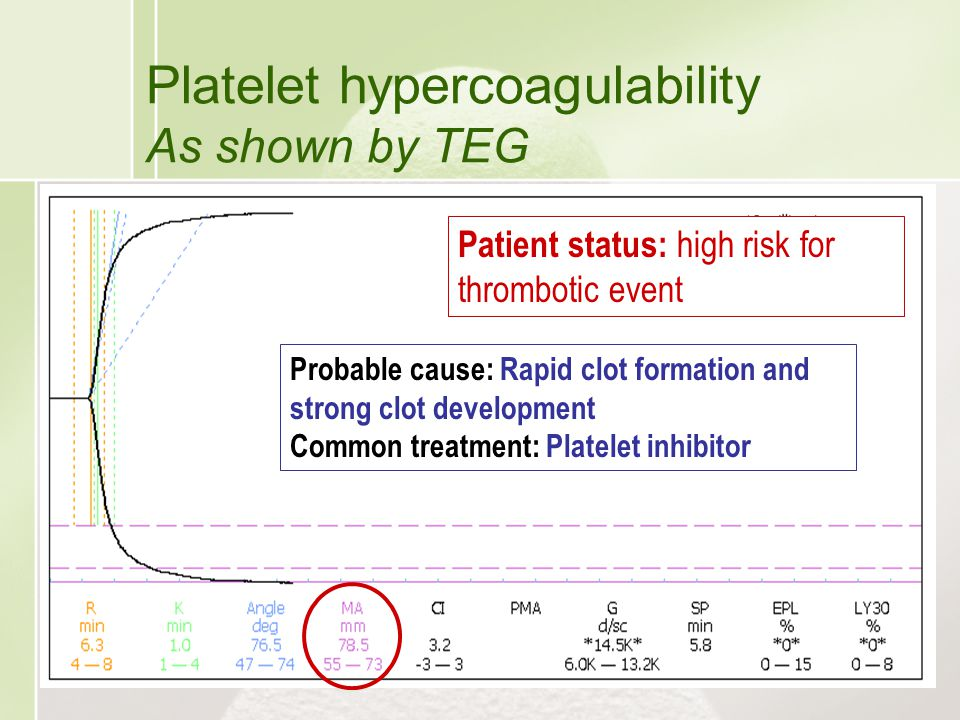 Platelet hypercoagulability As shown by TEG Patient status: high risk for thrombotic event Probable cause: Rapid clot formation and strong clot develo