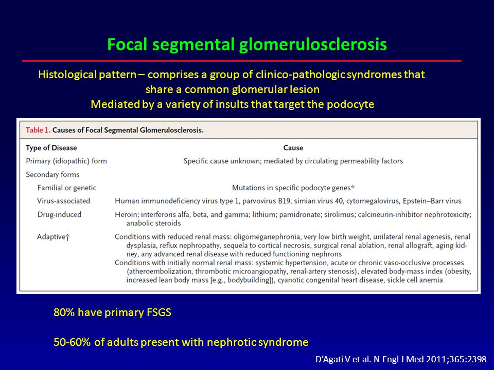 Focal segmental glomerulosclerosis 80% have primary FSGS 50-60% of adults present with nephrotic syndrome Histological pattern – comprises a group of