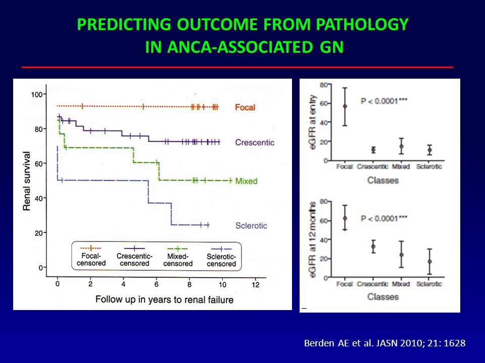 PREDICTING OUTCOME FROM PATHOLOGY IN ANCA-ASSOCIATED GN Berden AE et al. JASN 2010; 21: 1628