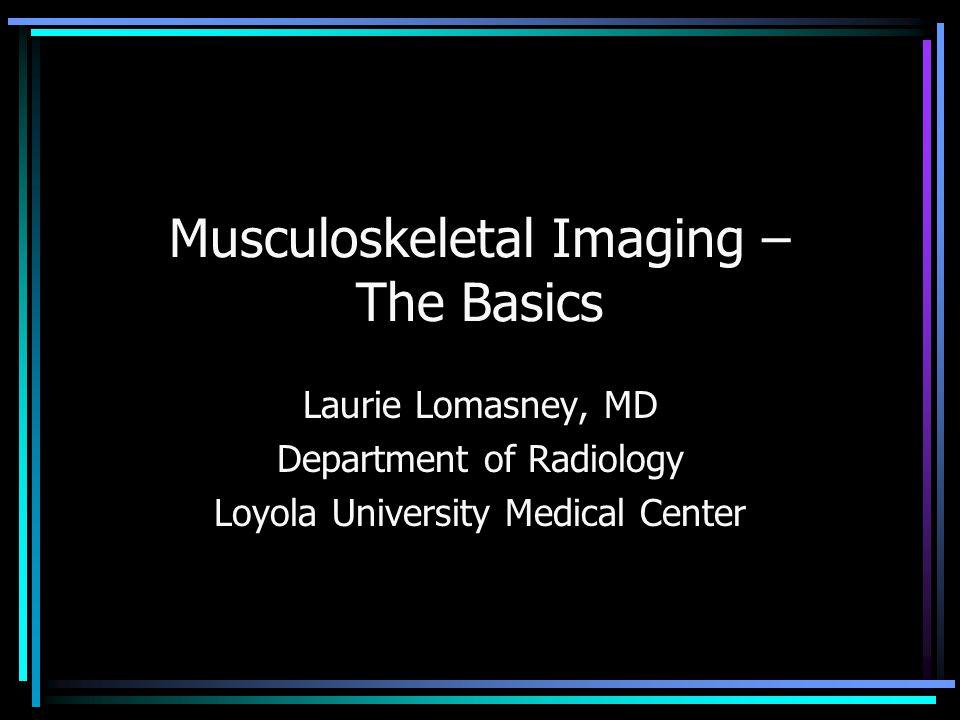 Ultrasound – Achilles Tendon Intrasubstance tear
