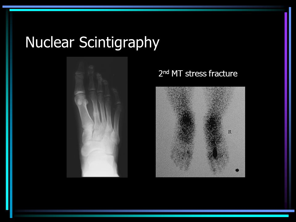 Nuclear Scintigraphy 2 nd MT stress fracture
