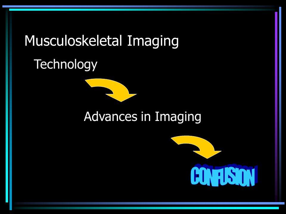 MRI – Internal Derangement Sagittal – Intact ACL Torn ACL