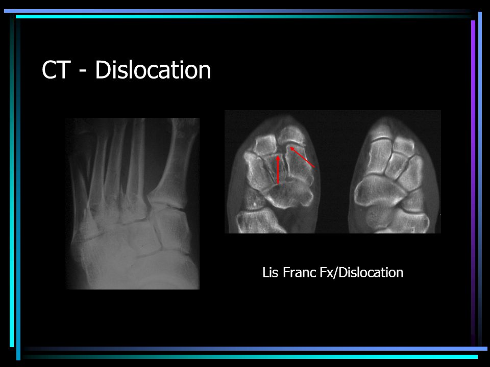 CT - Dislocation Lis Franc Fx/Dislocation