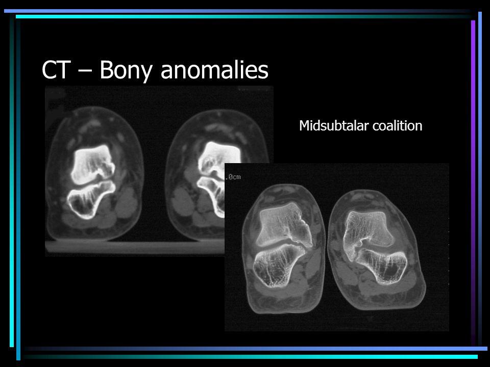 CT – Bony anomalies Midsubtalar coalition