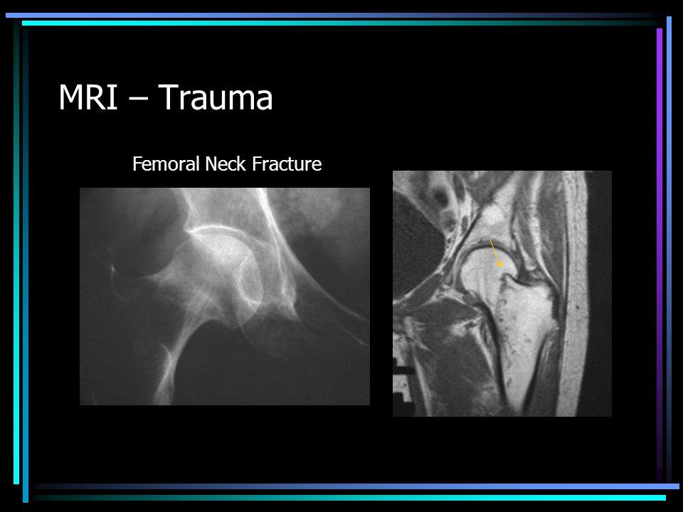 MRI – Trauma Femoral Neck Fracture