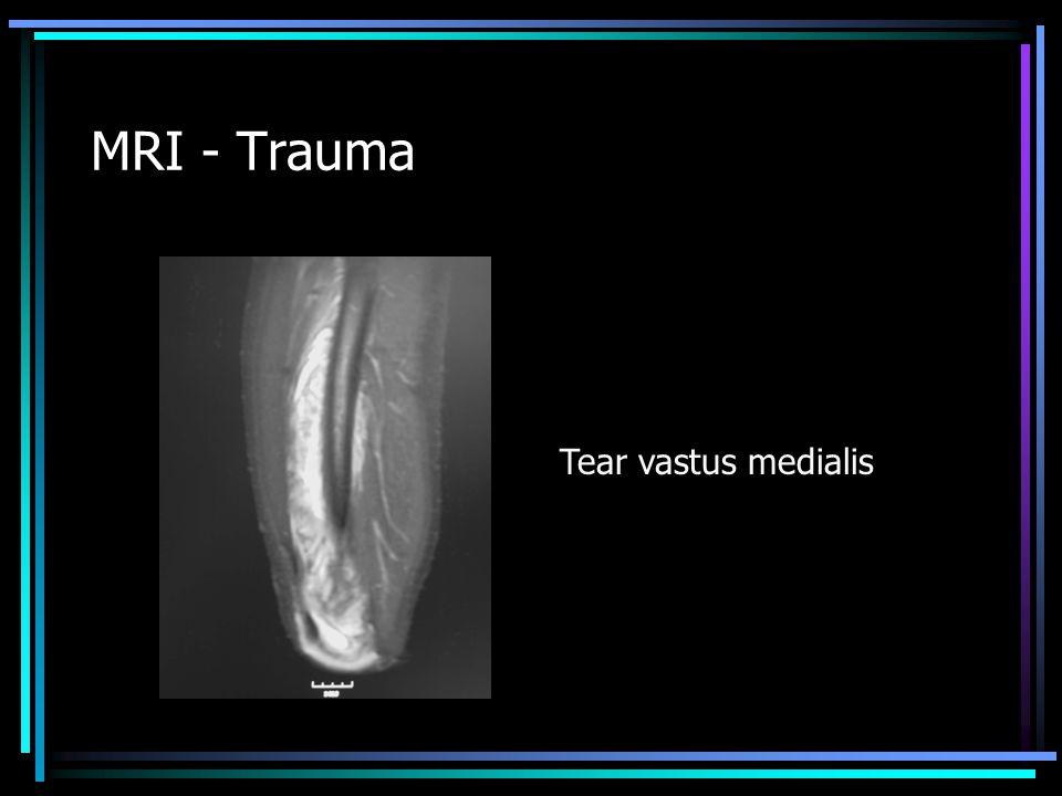 MRI - Trauma Tear vastus medialis