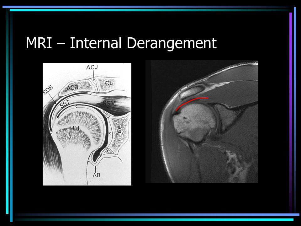 MRI – Internal Derangement