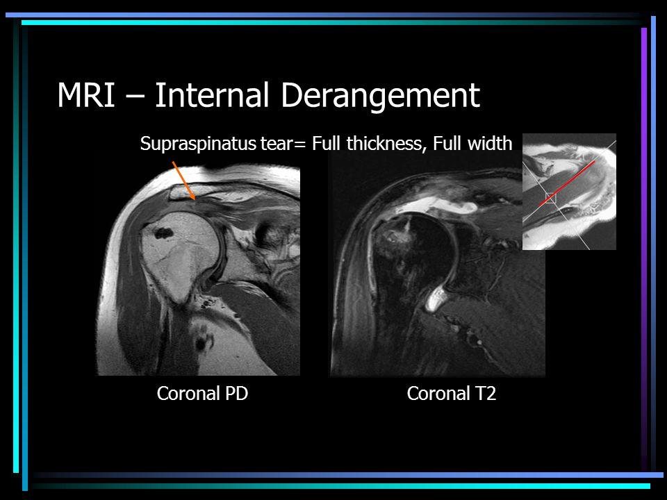 Supraspinatus tear= Full thickness, Full width Coronal PDCoronal T2