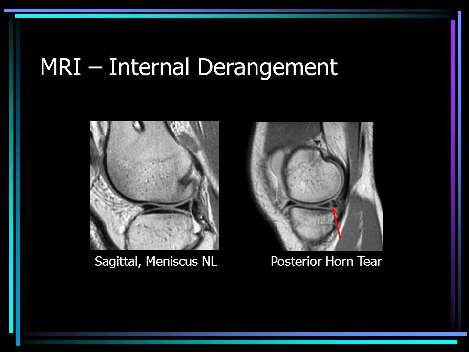 MRI – Internal Derangement Sagittal, Meniscus NLPosterior Horn Tear