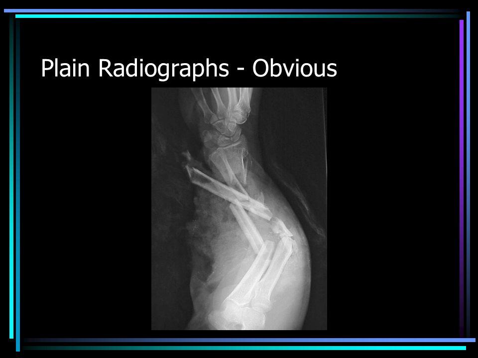 MRI – Internal Derangement
