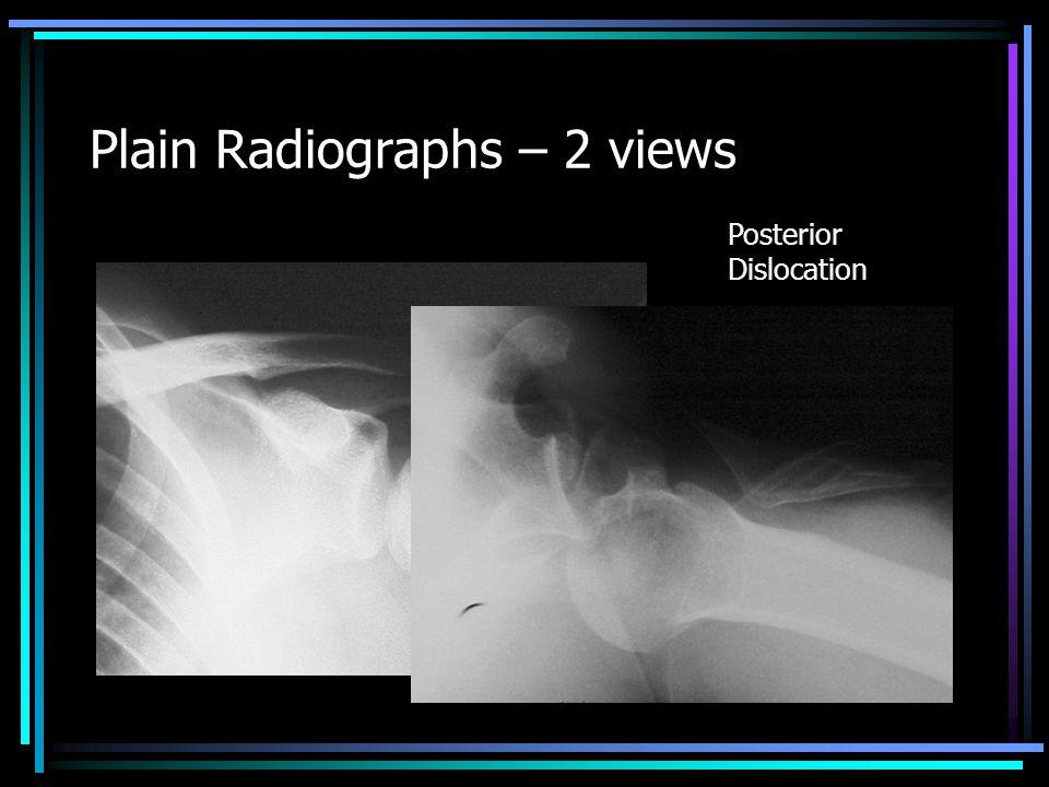 Plain Radiographs – Extra views Radial Head Fx