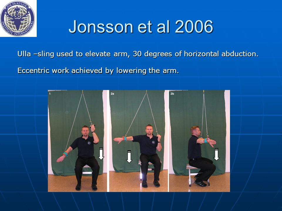 Jonsson et al 2006 Ulla –sling used to elevate arm, 30 degrees of horizontal abduction.