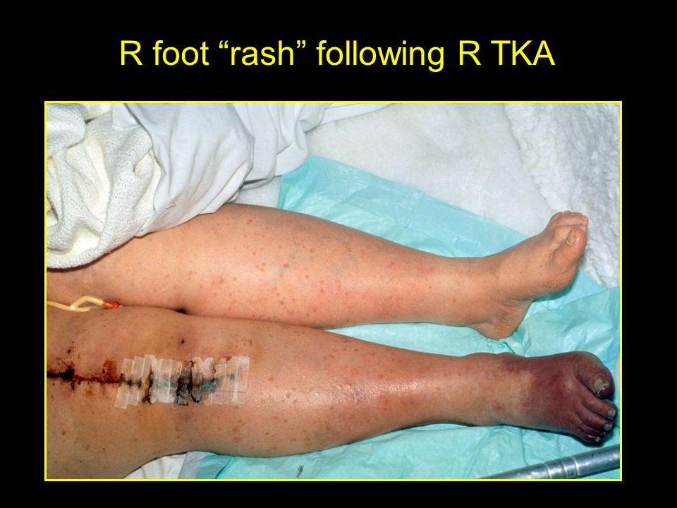 R foot rash following R TKA