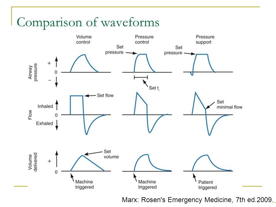 Comparison of waveforms Marx: Rosen's Emergency Medicine, 7th ed.2009.