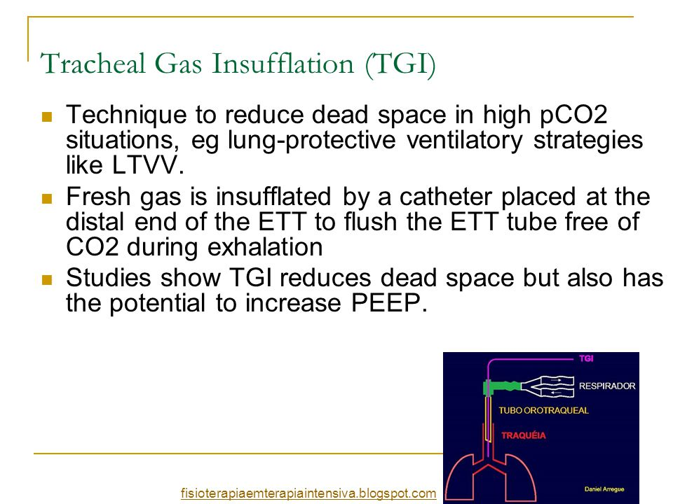 Tracheal Gas Insufflation (TGI) Technique to reduce dead space in high pCO2 situations, eg lung-protective ventilatory strategies like LTVV. Fresh gas