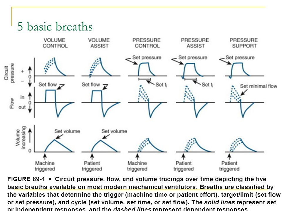 Modes of mechanical ventilation 1.Controlled mechanical ventilation (CMV) 2.