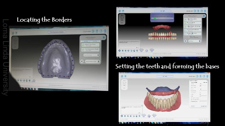 Loma Linda University Implant Dentistry Locating the Borders Setting the teeth and forming the bases