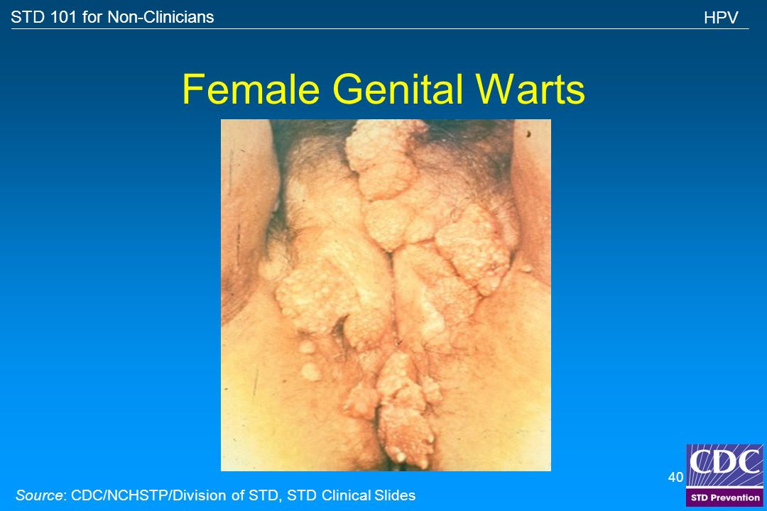 STD 101 for Non-Clinicians 39 Oral Warts Source: Cincinnati STD/HIV Prevention Training Center HPV