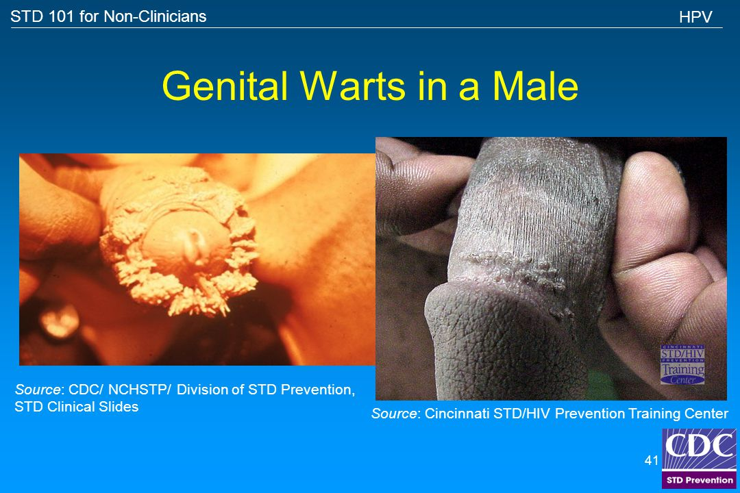 STD 101 for Non-Clinicians 40 Female Genital Warts HPV Source: CDC/NCHSTP/Division of STD, STD Clinical Slides
