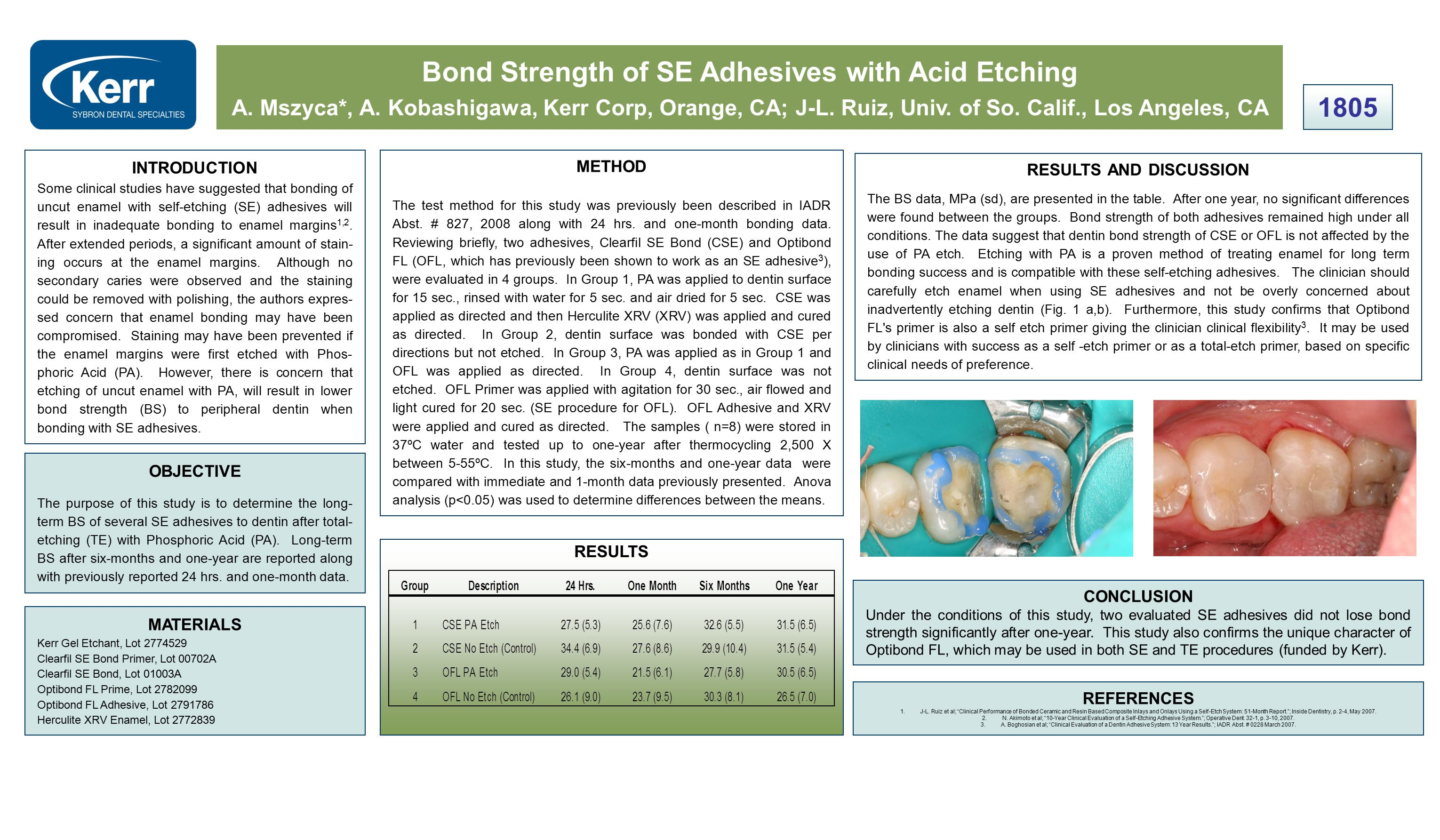 Bond Strength of SE Adhesives with Acid Etching A.