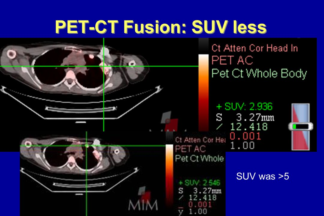 PET-CT Fusion: SUV less SUV was >5