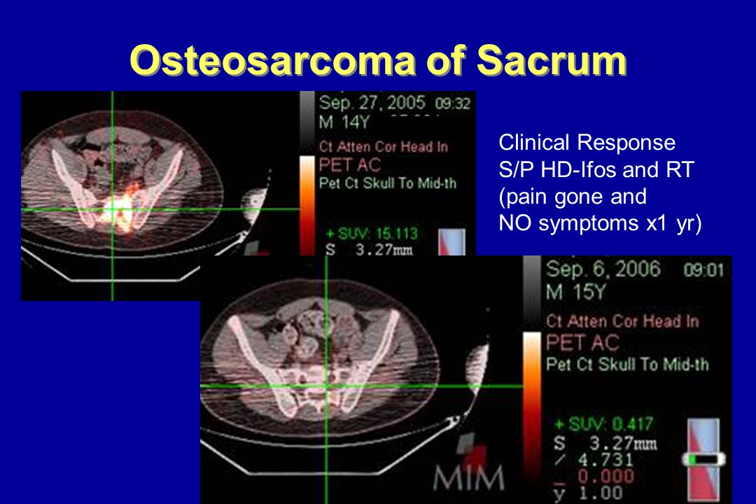 Osteosarcoma of Sacrum Clinical Response S/P HD-Ifos and RT (pain gone and NO symptoms x1 yr)