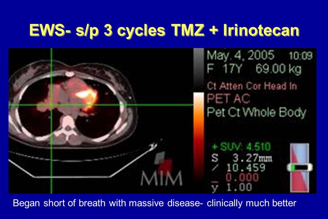 EWS- s/p 3 cycles TMZ + Irinotecan Began short of breath with massive disease- clinically much better