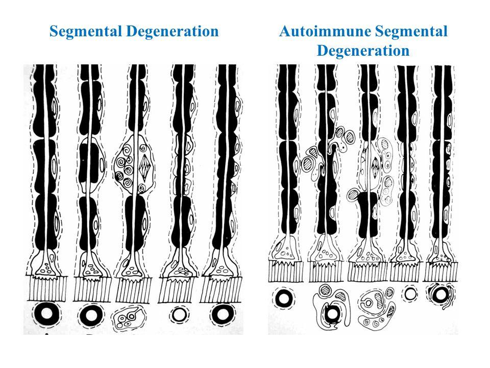 Segmental DegenerationAutoimmune Segmental Degeneration